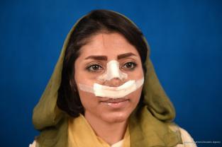 Creciente interés por la cirugía estética entre las mujeres iraníes