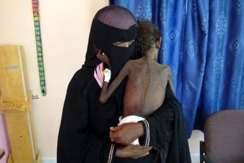 Naciones Unidas: Por primera vez Yemen necesita más ayuda que…