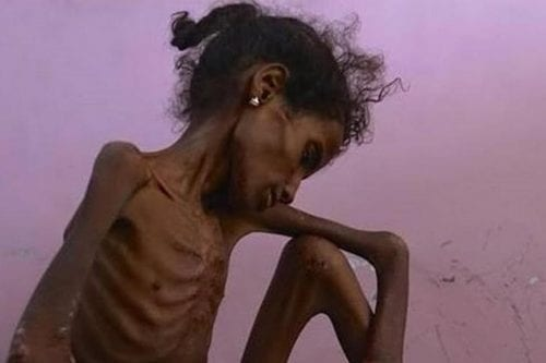 Facebook censura imágenes de niños yemeníes desnutridos